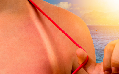 Natural Polyphenols Formulation for Sun-Related Skin Conditions