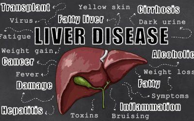 Natural Ways to Improve a Fatty Liver